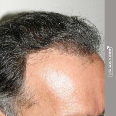 hair-transplantation-bergmann-kord-results-FUT-57030TL-12months-right-001