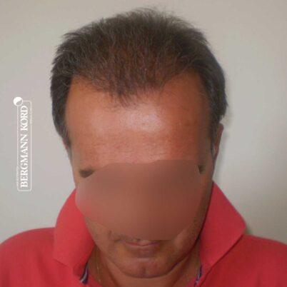 hair-transplantation-bergmann-kord-results-FUT-57030TL-5months-front-001