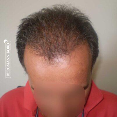 hair-transplantation-bergmann-kord-results-FUT-57030TL-5months-top-001