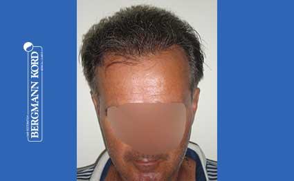 hair-transplantation-bergmann-kord-results-FUT-57030TL-after-001
