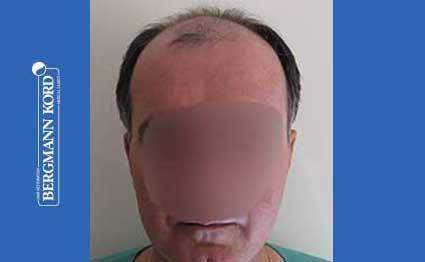 hair-transplantation-bergmann-kord-results-FUT-57030TL-before-001