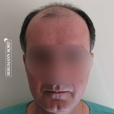 hair-transplantation-bergmann-kord-results-FUT-57030TL-before-front-001