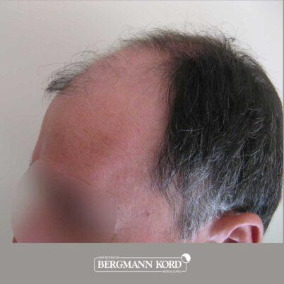 hair-transplantation-bergmann-kord-results-FUT-57030TL-before-left-001