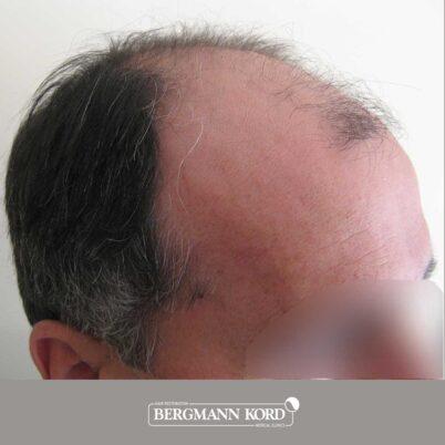 hair-transplantation-bergmann-kord-results-FUT-57030TL-before-right-001