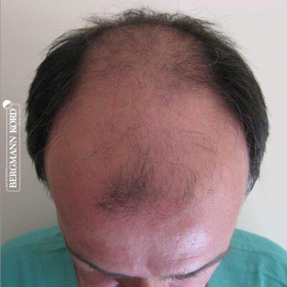 hair-transplantation-bergmann-kord-results-FUT-57030TL-before-top-001