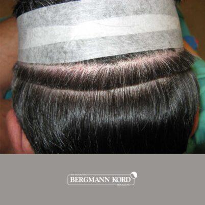 hair-transplantation-bergmann-kord-results-FUT-57030TL-donor-area-001