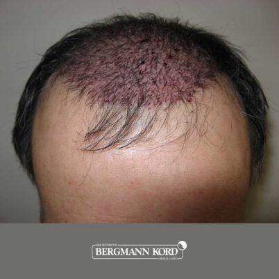 hair-transplantation-bergmann-kord-results-FUT-57030TL-this-day-front-001