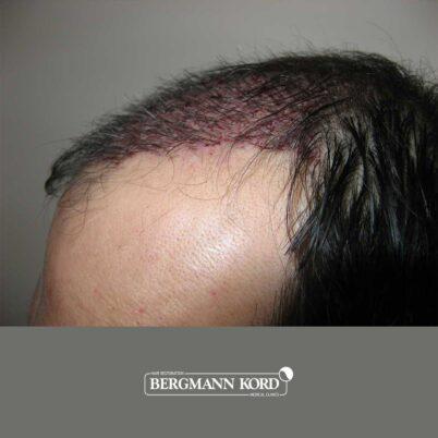 hair-transplantation-bergmann-kord-results-FUT-57030TL-this-day-left-001