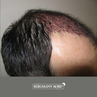 hair-transplantation-bergmann-kord-results-FUT-57030TL-this-day-right-001