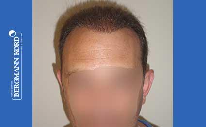 hair-transplantation-bergmann-kord-results-FUT-58054TL-after-001