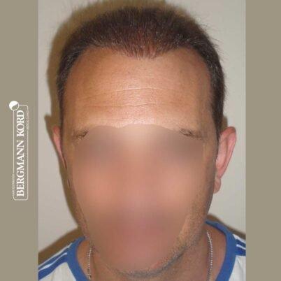 hair-transplantation-bergmann-kord-results-FUT-58054TL-after-front-001