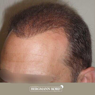 hair-transplantation-bergmann-kord-results-FUT-58054TL-after-left-001