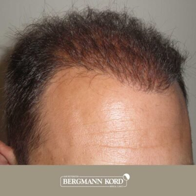 hair-transplantation-bergmann-kord-results-FUT-58054TL-after-right-001
