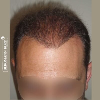 hair-transplantation-bergmann-kord-results-FUT-58054TL-after-top-001