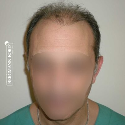 hair-transplantation-bergmann-kord-results-FUT-58054TL-before-front-001
