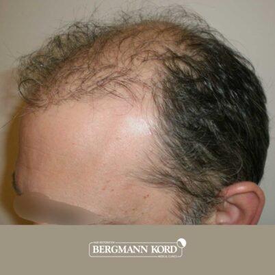 hair-transplantation-bergmann-kord-results-FUT-58054TL-before-left-001
