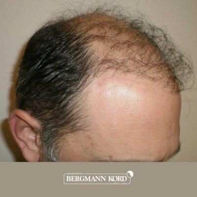 hair-transplantation-bergmann-kord-results-FUT-58054TL-before-right-001