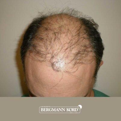 hair-transplantation-bergmann-kord-results-FUT-58054TL-before-top-001