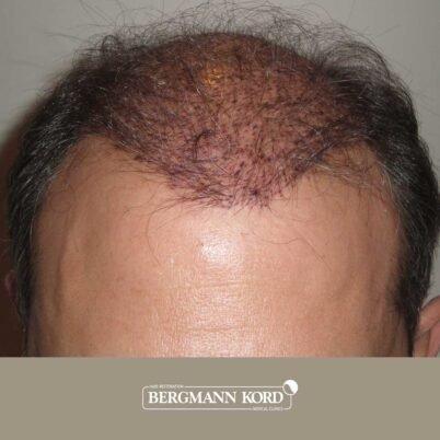 hair-transplantation-bergmann-kord-results-FUT-58054TL-this-day-front-001