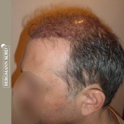 hair-transplantation-bergmann-kord-results-FUT-58054TL-this-day-left-001