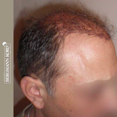 hair-transplantation-bergmann-kord-results-FUT-58054TL-this-day-right-001