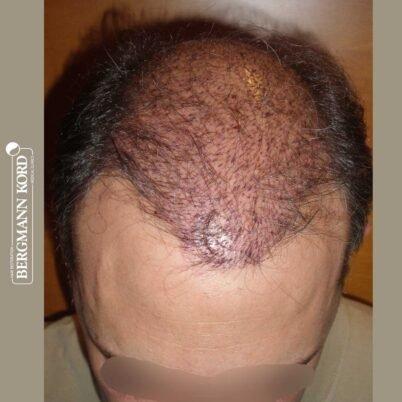 hair-transplantation-bergmann-kord-results-FUT-58054TL-this-day-top-001