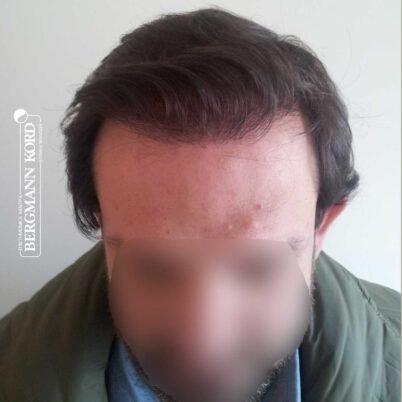 hair-transplantation-bergmann-kord-results-FUT-59033TL-1year-front-001