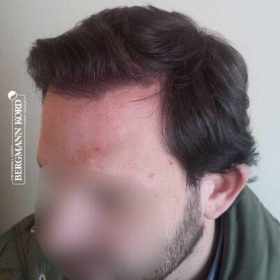 hair-transplantation-bergmann-kord-results-FUT-59033TL-1year-left-001