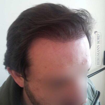 hair-transplantation-bergmann-kord-results-FUT-59033TL-1year-right-001
