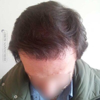 hair-transplantation-bergmann-kord-results-FUT-59033TL-1year-top-001