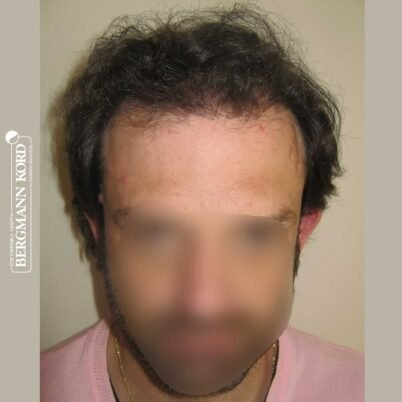 hair-transplantation-bergmann-kord-results-FUT-59033TL-6months-front-001