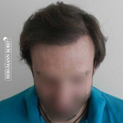 hair-transplantation-bergmann-kord-results-FUT-59033TL-8months-front-001