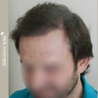 hair-transplantation-bergmann-kord-results-FUT-59033TL-8months-left-001