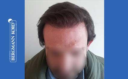 hair-transplantation-bergmann-kord-results-FUT-59033TL-after-001
