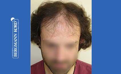 hair-transplantation-bergmann-kord-results-FUT-59033TL-before-001