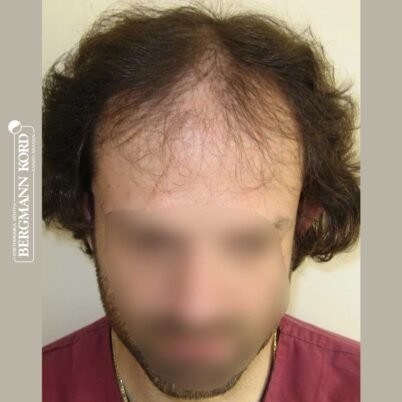 hair-transplantation-bergmann-kord-results-FUT-59033TL-before-front-001