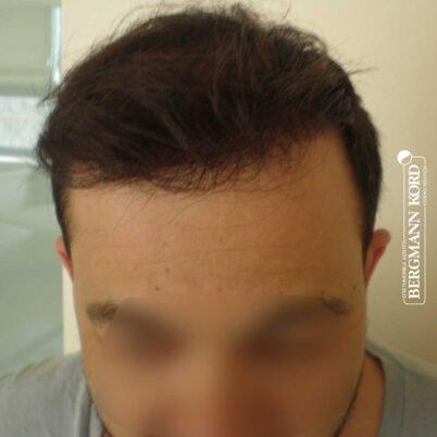 hair-transplantation-bergmann-kord-results-FUT-62017TL-10months-front-001
