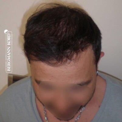 hair-transplantation-bergmann-kord-results-FUT-62017TL-10months-top-001