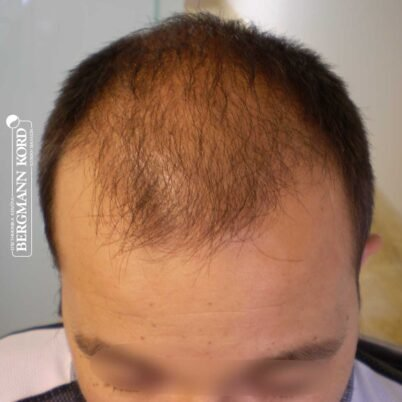 hair-transplantation-bergmann-kord-results-FUT-62017TL-3months-001