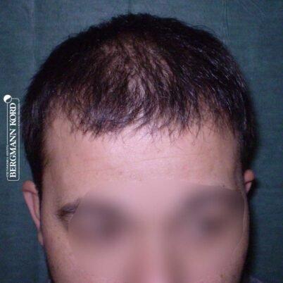 hair-transplantation-bergmann-kord-results-FUT-62017TL-6months-001
