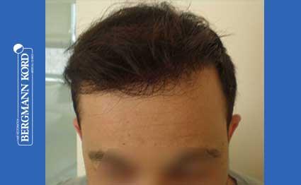 hair-transplantation-bergmann-kord-results-FUT-62017TL-after-001