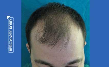 hair-transplantation-bergmann-kord-results-FUT-62017TL-before-001