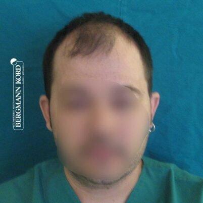 hair-transplantation-bergmann-kord-results-FUT-62017TL-before-front-001