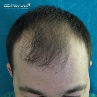 hair-transplantation-bergmann-kord-results-FUT-62017TL-before-top-001