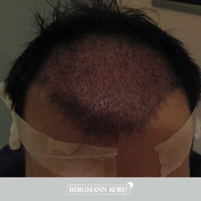 hair-transplantation-bergmann-kord-results-FUT-62017TL-this-day-001