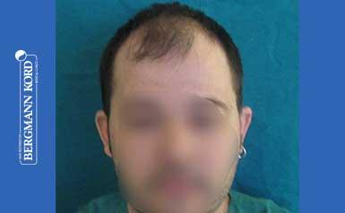 hair-transplantation-bergmann-kord-results-FUT-62017TL-thumb-001
