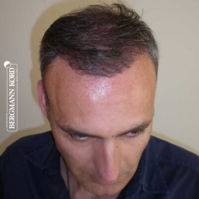 hair-transplantation-bergmann-kord-results-FUT-66029TL-3-months-front-001