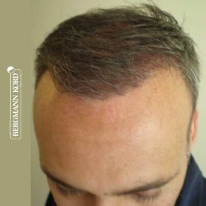 hair-transplantation-bergmann-kord-results-FUT-66029TL-3-months-hairline-001