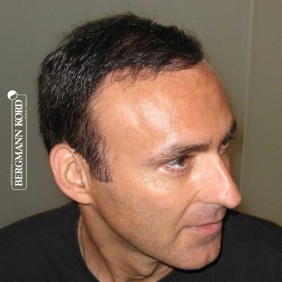 hair-transplantation-bergmann-kord-results-FUT-66029TL-5-months-right-001