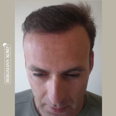 hair-transplantation-bergmann-kord-results-FUT-66029TL-7-months-front-001